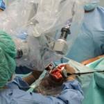 SPSKM wszczepienie implantu hybrydowego
