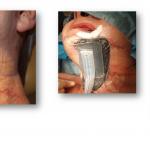 foto12-Podciśnieniowa Terapia Ran