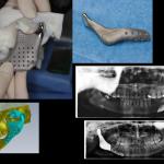 foto8-Implanty Indywidualne